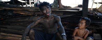 Blackened lives in Pinoy charcoal slum
