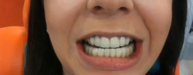 """Snap on smile"", dientes perfectos en 3 segundos / Foto: captura video YouTube"