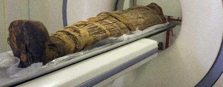 Even mummies had clogged arteries