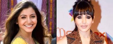 Anushka Sharma: Before and after surgery?