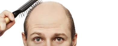 A wrong hairstyle can make you bald