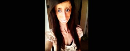 Latest on 'World's Ugliest Woman'