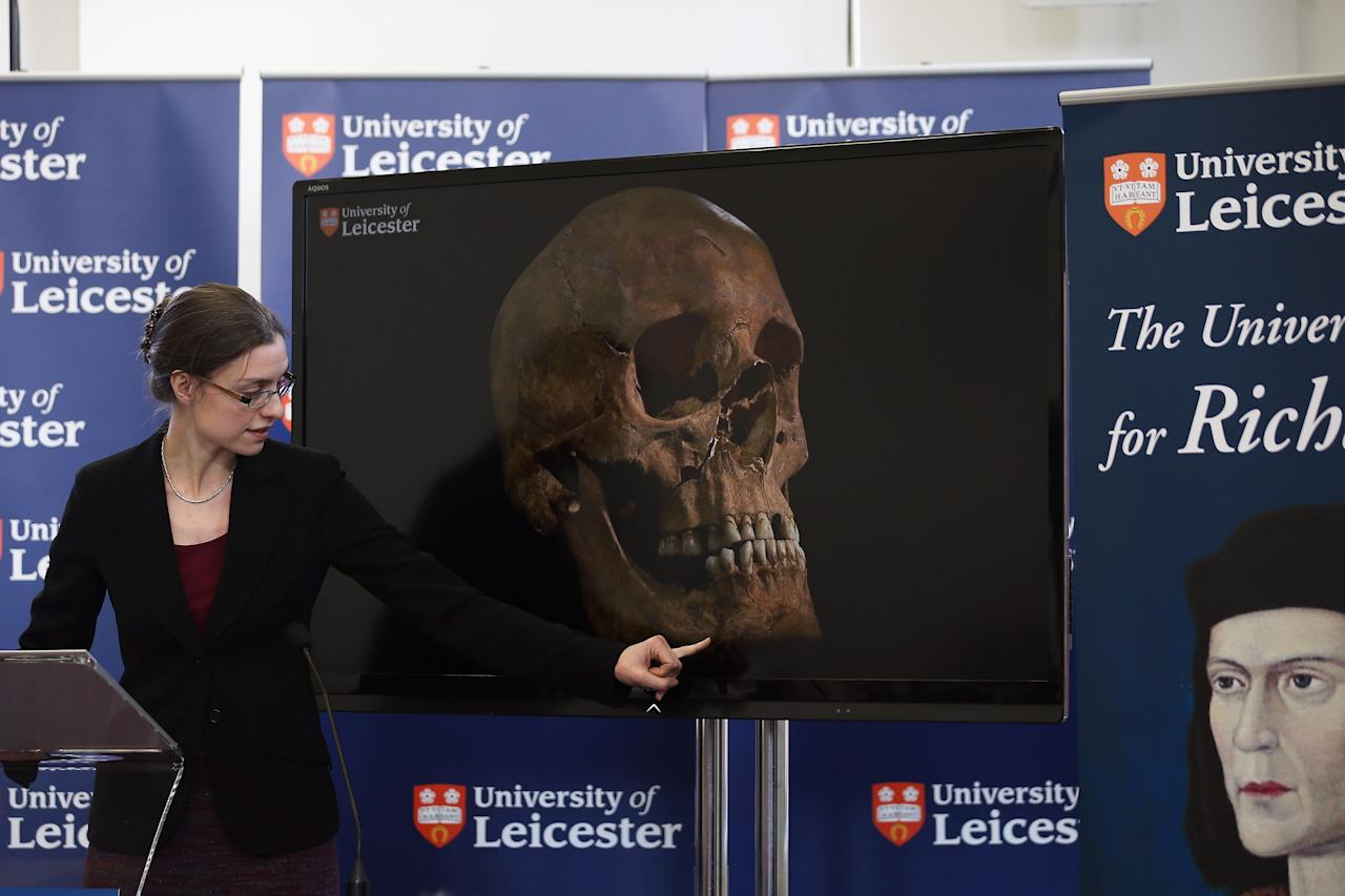 LEICESTER, ENGLAND - FEBRUARY 04:  Dr Jo Appleby speaks during a press conference at University Of Leicester as archaeologists announce whether the human remains found in Leicester are those of King Richard III on February 4, 2013 in Leicester, England. The University of Leicester has been carrying out scientific investigations on remains found in a car park to find out whether they are those of King Richard III since last September, when the skeleton was discovered in the foundations of Greyfriars Church, Leicester.  (Photo by Dan Kitwood/Getty Images)