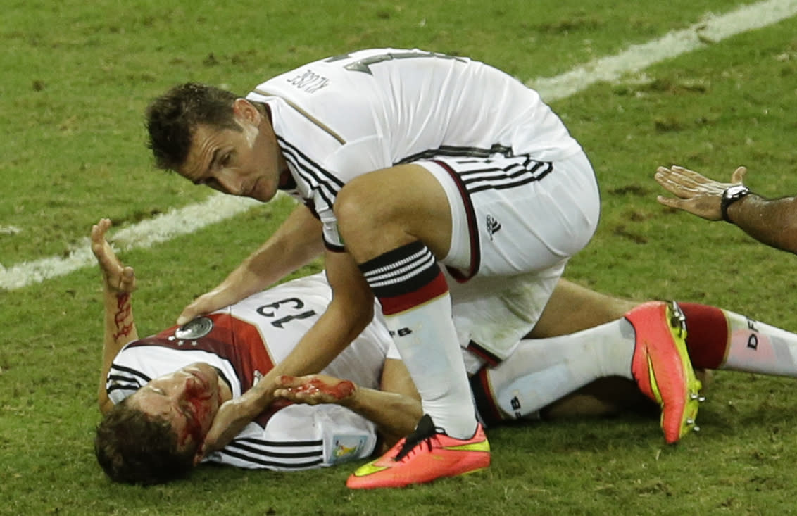 Germany's Thomas Mueller, right, is attended by his teammate Miroslav Klose after suffering a injury during the group G World Cup soccer match between Germany and Ghana at the Arena Castelao in Fortaleza, Brazil, Saturday, June 21, 2014. (AP Photo/Themba Hadebe)