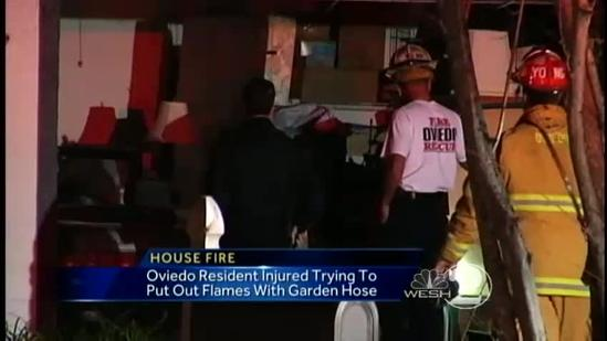 Man hurt trying to douse flames with garden hose