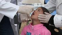 Polio in Syria Worries World Health Organization