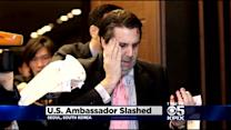 US Ambassador To South Korea Mark Lippert, Stanford Alum, Slashed By Man With Blade