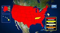 Widespread flu cases spread to 48 states