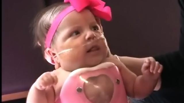 Baby born with heart outside chest goes home