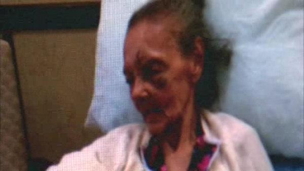Woman says grandmother abused at nursing home