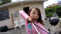 11-year-old uses a sling bow to remove her baby tooth