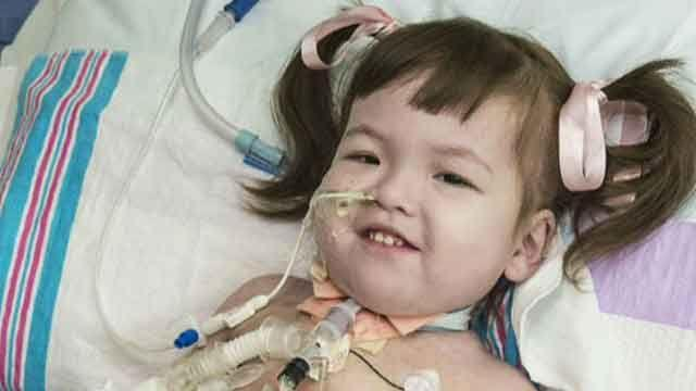 Child gets trachea made from own stem cells